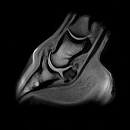 Standing MRI of a horse's foot showing bones and soft tissue structures